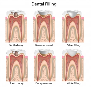 White Fillings Tooth Decay